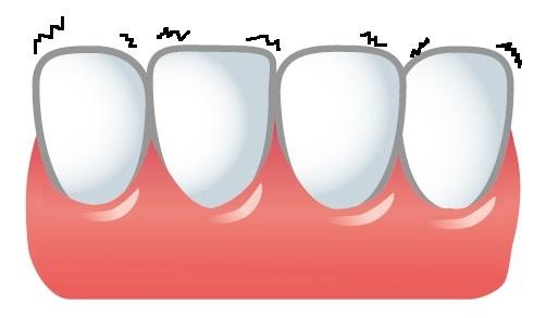歯が動くイラスト